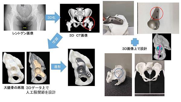 teknologi terbaru jepang - sendi tulang buatan